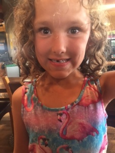 Avery missing tooth